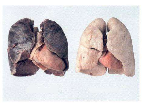 Fumar no es un placer: el contrabando de tabaco