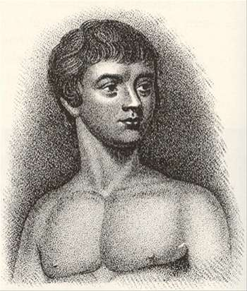 Víctor de Aveyron